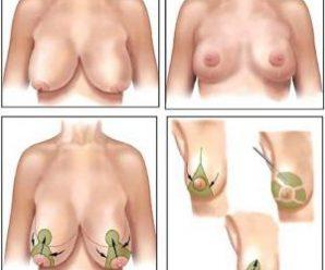 Как стать обладательницой красивой груди?